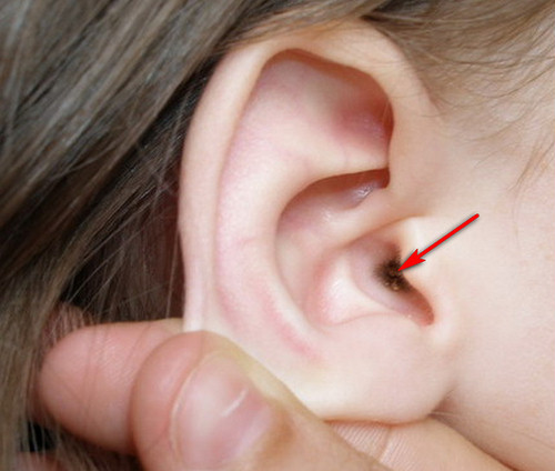 Ушах у в пробки условиях ребенка лечение домашних в крови инвитро химический анализ