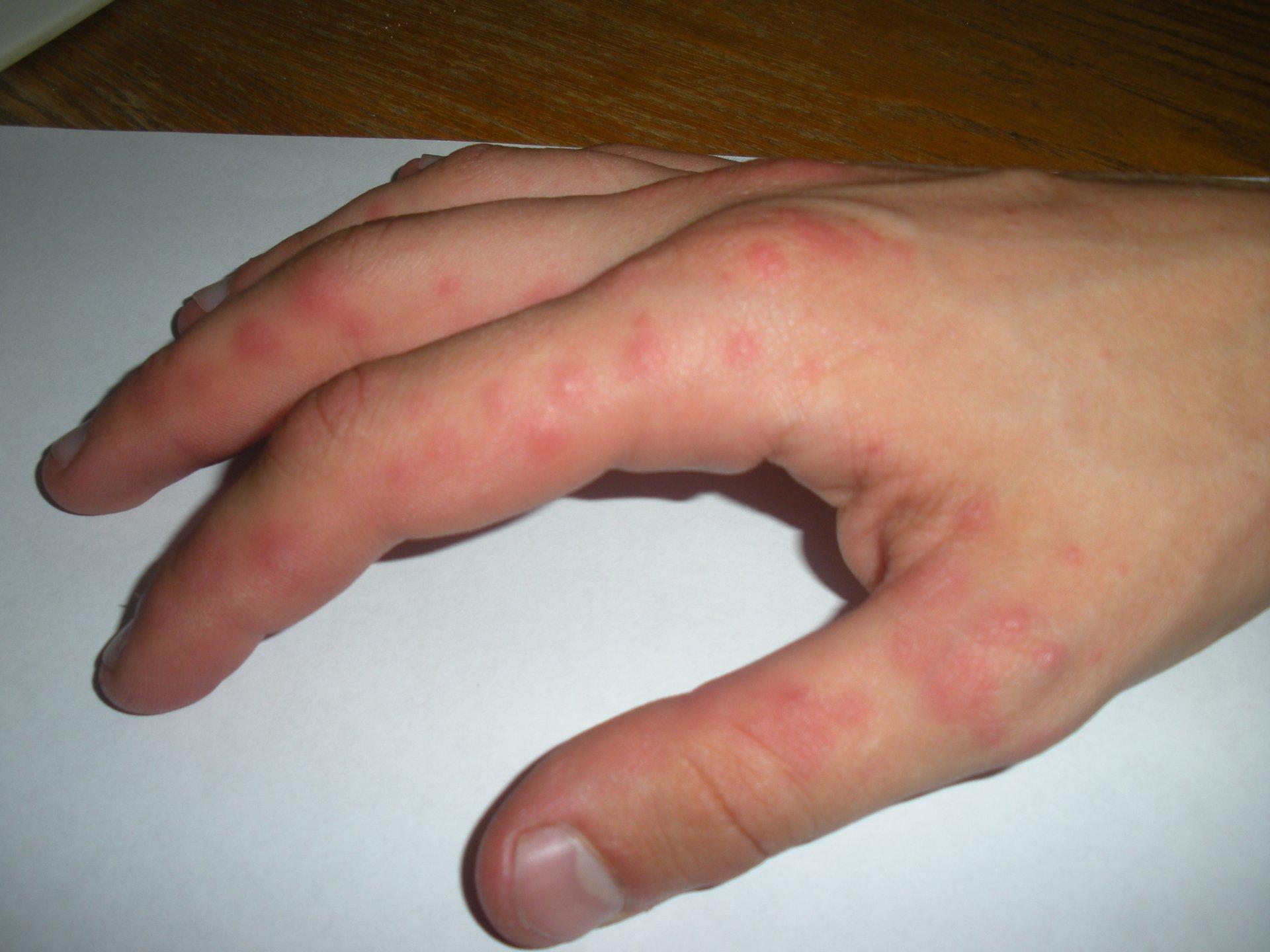 Сыпь на руках в виде прыщиков чешется